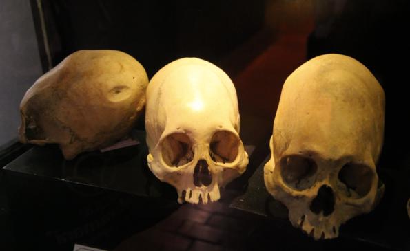 Museo de Sitio del Qoricancha, skulls